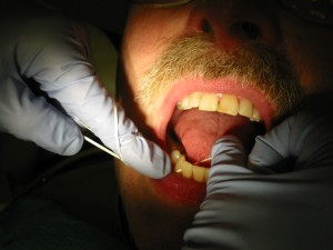 how to prevent cavities between teeth flossing