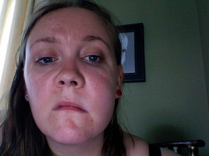 facial swelling from abscess