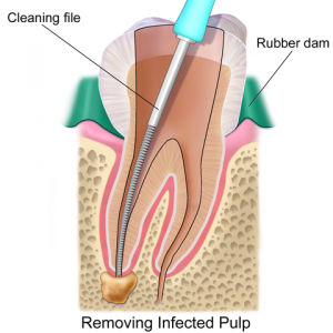 root canal file